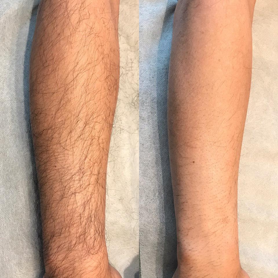 ひじ下脱毛1回 施術後1ヵ月経過写真左ビフォー 右アフター