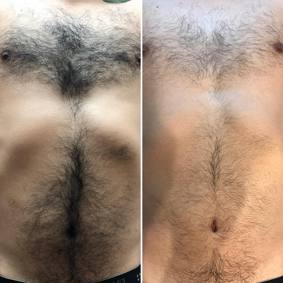 ボディセット脱毛1回 施術後1ヵ月経過写真左ビフォー 右アフター