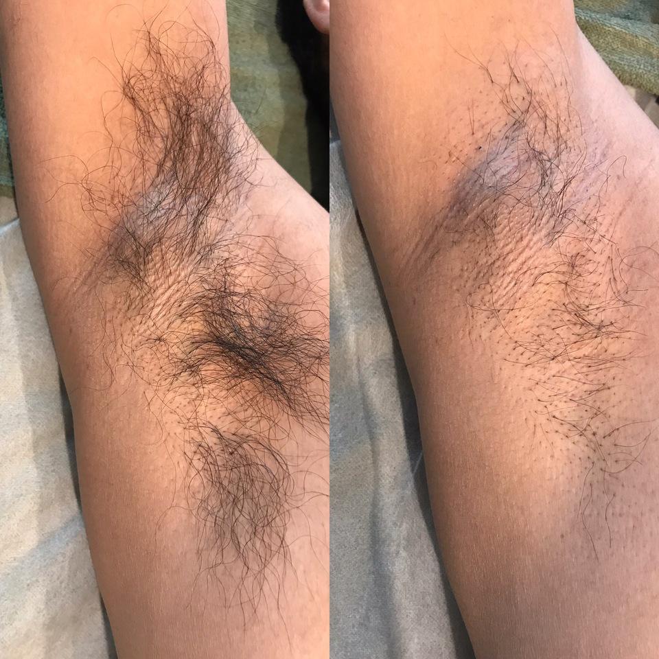 脇脱毛1回 施術後1ヵ月経過写真左ビフォー 右アフター